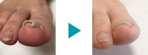 巻き爪改善症例9