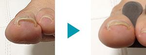 巻き爪改善症例11