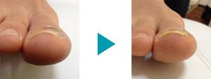 巻き爪改善症例15