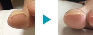 巻き爪改善症例16