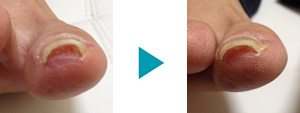 巻き爪改善症例20