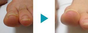 巻き爪改善症例21