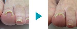 巻き爪改善症例23