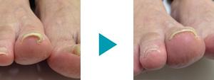 巻き爪改善症例24