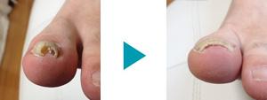 巻き爪改善症例32