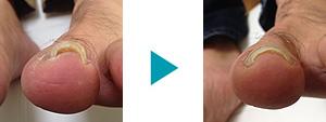 巻き爪改善症例35