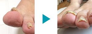 巻き爪改善症例37