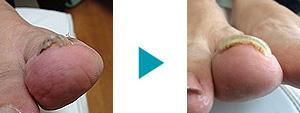 巻き爪改善症例38