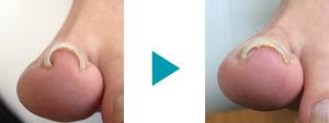 巻き爪改善症例48