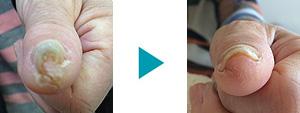 巻き爪改善症例49