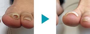 巻き爪改善症例52