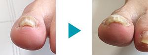 巻き爪改善症例56