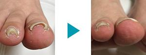 巻き爪改善症例61