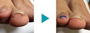 巻き爪改善症例63