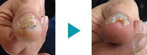 巻き爪改善症例64