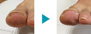 巻き爪改善症例67