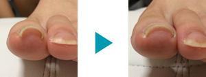 巻き爪改善症例72