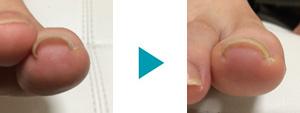 巻き爪改善症例73