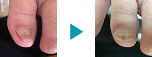 巻き爪改善症例58