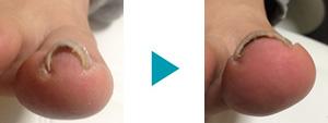 巻き爪改善症例79