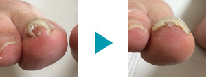 巻き爪改善症例86