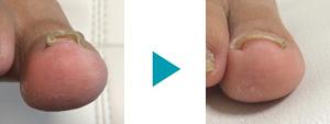 巻き爪改善症例88