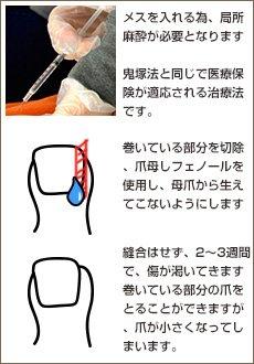 病院などの巻き爪治療 鬼塚法