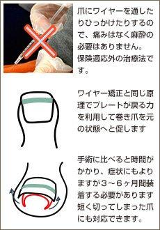 病院などの巻き爪治療 プレート矯正