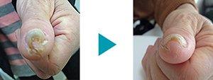 巻き爪改善症例6