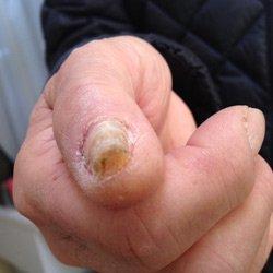 手の巻き爪