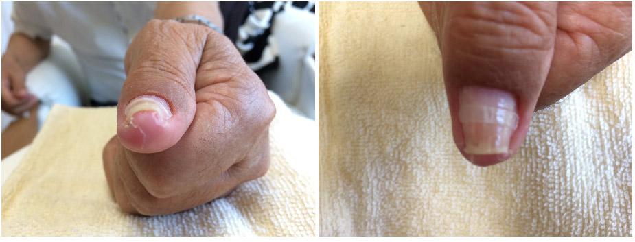 左手の巻き爪1回目