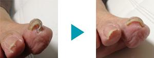 巻き爪改善症例2