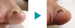 巻き爪改善症例4
