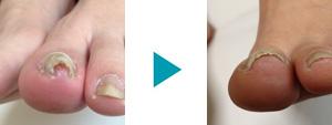 巻き爪改善症例7