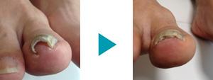巻き爪改善症例8