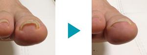巻き爪改善症例12