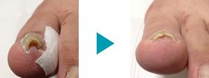 巻き爪改善症例17