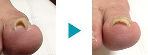 巻き爪改善症例18
