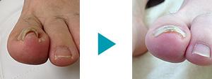 巻き爪改善症例30