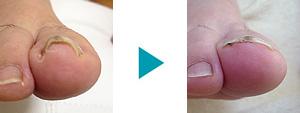 巻き爪改善症例31