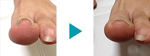 巻き爪改善症例33