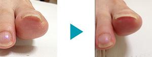 巻き爪改善症例41