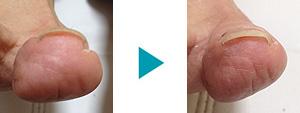 巻き爪改善症例42