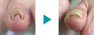 巻き爪改善症例43