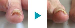 巻き爪改善症例44