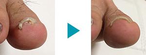 巻き爪改善症例45
