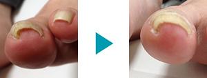 巻き爪改善症例46