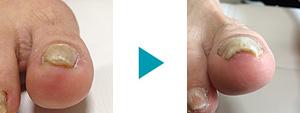 巻き爪改善症例57