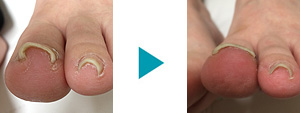 巻き爪改善症例60