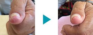 巻き爪改善症例68